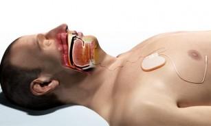 Stimulatorul lingual care ajută persoanele cu apnee nocturnă să respire normal