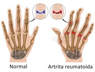 Stimularea nervului vag poate ameliora simptomele poliartritei reumatoide