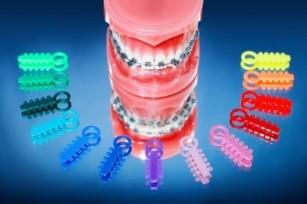 Componentele unui aparat dentar și rolul acestora