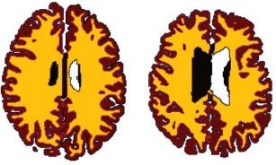 Creierul persoanelor obeze de vârsta a doua, mai îmbătrânit cu 10 ani