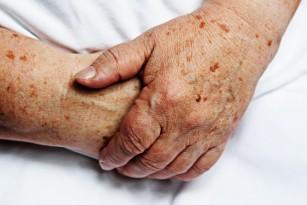 Incidența infarctului miocardic la vârstnici s-ar putea tripla până în anul 2060