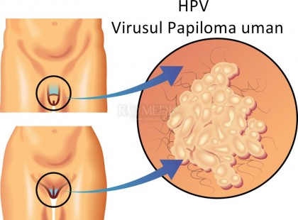 Vaccinul HPV a redus riscul de infectare cu 90% în ultimii 10 ani
