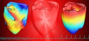 Defibrilarea optică ar putea fi utilizată pe viitor în schimbul celei cu șocuri electrice