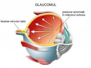 Pacienții cu glaucom și leziune de nerv optic ar putea vedea din nou