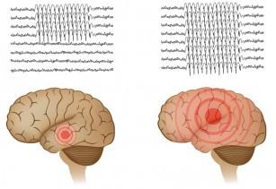 O nouă tehnică pentru tratamentul chirurgical al epilepsiei