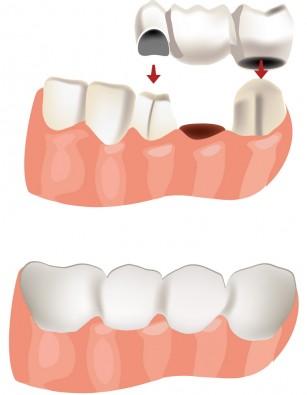 Ce soluții există pentru dinții lipsă?