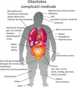 România este țara europeană cu cel mai mic procent de adulți obezi