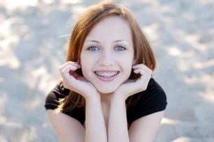 Aparatele dentare favorizează apariția cariilor?