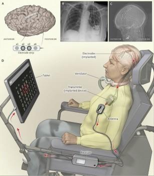 Un implant unic le permite bolnavilor de scleroză laterală amiotrofică (ASL) să comunice