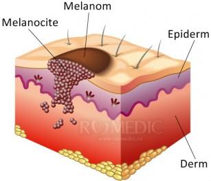 Un nou medicament ar putea reduce răspândirea melanomului cu până la 90%