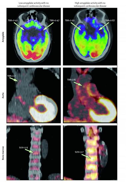 Primul studiu care relaționează activitatea cerebrală asociată cu stresul cu riscul cardiovascular
