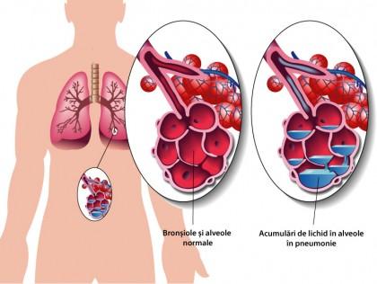 """""""Vesta inteligentă"""" pentru diagnosticul pneumoniei"""