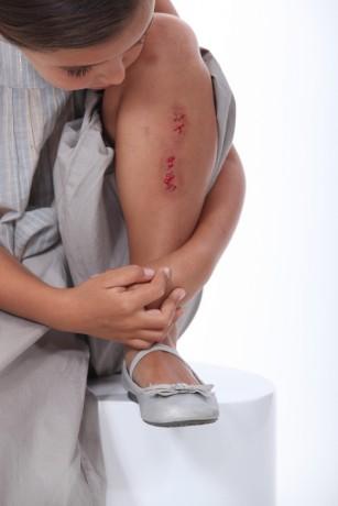 De ce antisepticele produc usturime pe răni?