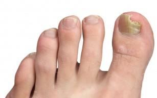 Cum să evitați infecțiile micotice ale unghiilor