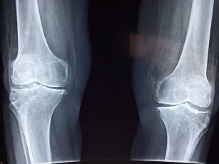 Scăderea în greutate poate încetini degenerarea articulației genunchiului - confirmat de studiu