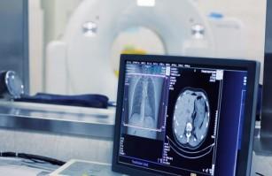 Analiza computerizată care prezice riscul de mortalitate al pacienților