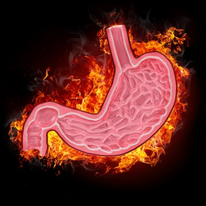Gastrita acuta