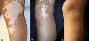 Restaurarea pigmentării pielii la pacienții cu vitiligo este posibilă pe termen lung