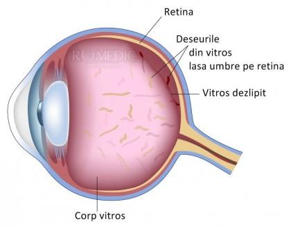 Laserul YAG - tratament eficient pentru miodezopsii