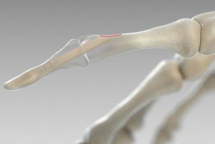 Noi șuruburi chirurgicale fabricate din material osos uman donat