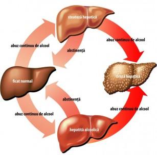 Hepatita alcoolica