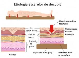 Stimulator muscular pentru prevenirea ulcerelor de presiune