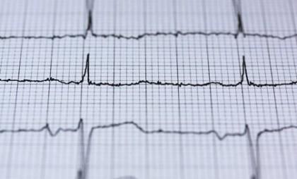 Ritmul cardiac ar putea ajuta la diferențierea depresiei de tulburarea bipolară