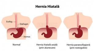 Hernia hiatala