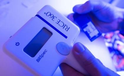 BiliSpec - dispozitivul care facilitează diagnosticarea icterului