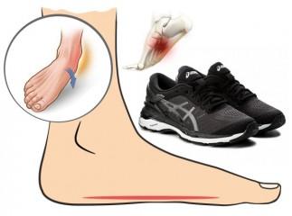 Alergarea cu picior plat (platfus)