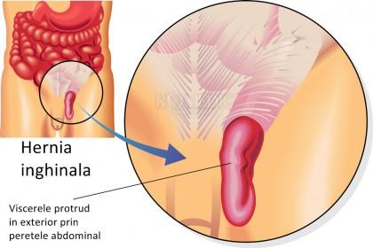 Hernia inghinala