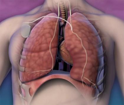 Pacemaker-ul pulmonar pentru tratarea apneei de somn severe de tip central