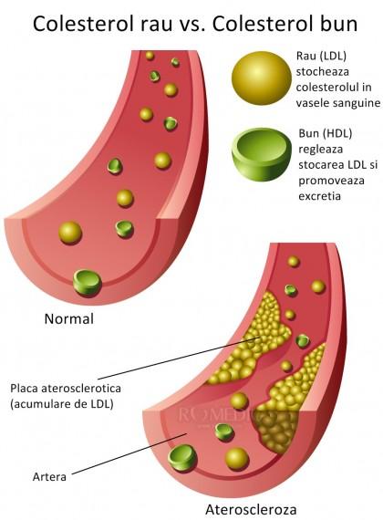 Factori de risc în bolile cardiovasculare :: Colesterolul și bolile cardiovasculare