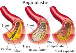 Când e indicată angioplastia cu stent?