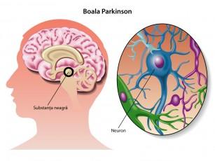 """De ce """"mor"""" celulele creierului în boala Parkinson?"""