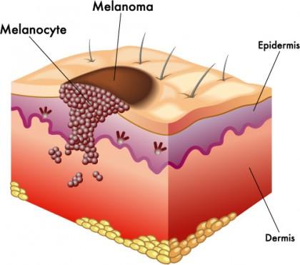 Microbiomul cutanat ar putea fi cheia prevenirii cancerului de piele