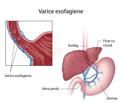 Varice esofagiene