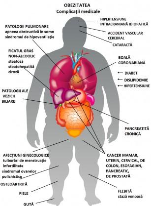 Bypass-ul gastric mai eficient în controlul obezității și diabetului decât modificările stilului de viață