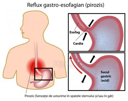 Refluxul gastroesofagian
