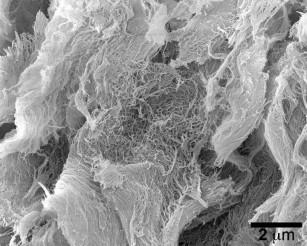 STINGel - un nou imunoterapic ce distruge celulele canceroase