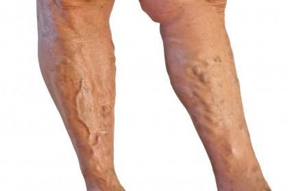 META-ANALIZĂ: Tratamentul pentru tromboflebita superficială a piciorului