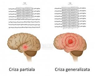 Un grup de celule din hipocamp asociate cu comoțiile și pierderile de memorie