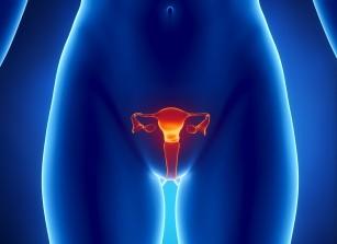 Posibilă asociere între infecția cu Chlamydia și cancerul ovarian