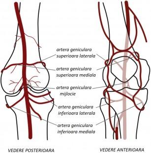 Embolizarea arterelor geniculare (GAE) - operația pentru osteoartrita genunchiului ce poate diminua durerea