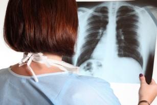Restabilirea sintezei lipidelor ar putea reduce fibroza pulmonară