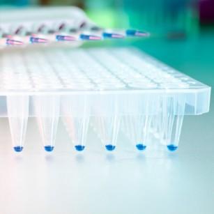 Cipul care poate detecta bacteria Legionella din apă în doar câteva minute