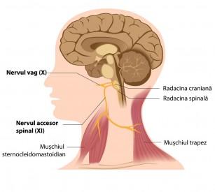 Recuperarea motorie după AVC accelerată de stimularea nervului vag