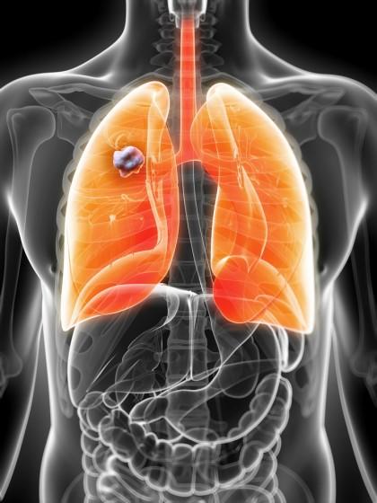 O nouă combinație de medicamente pentru cancerul pulmonar