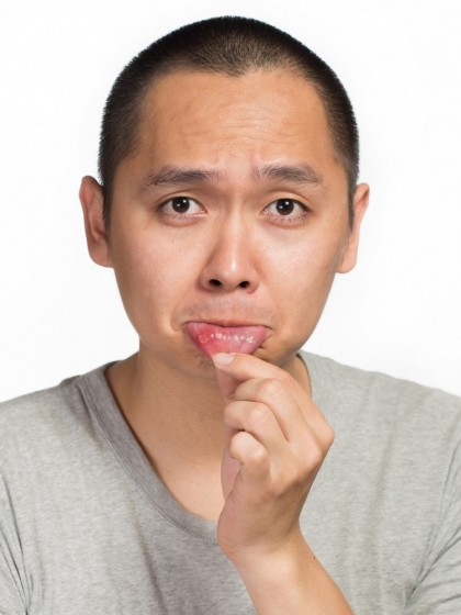 Aftele bucale (Ulcerele bucale)