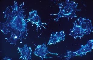 Centriolii - punctul slab al celulelor neoplazice?